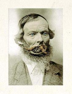 Syphilis | Fair Warning Creepy Pic's | Vintage medical ...