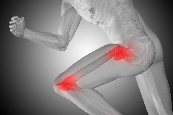 artroza durerii severe de sold)