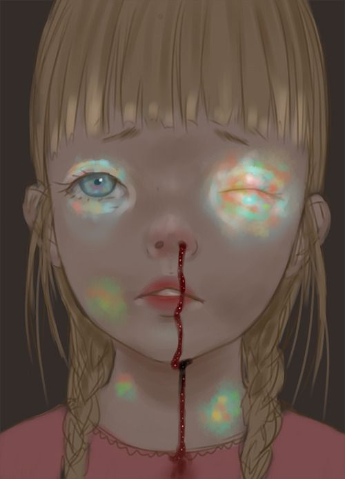 Opal bruises! Opruises?