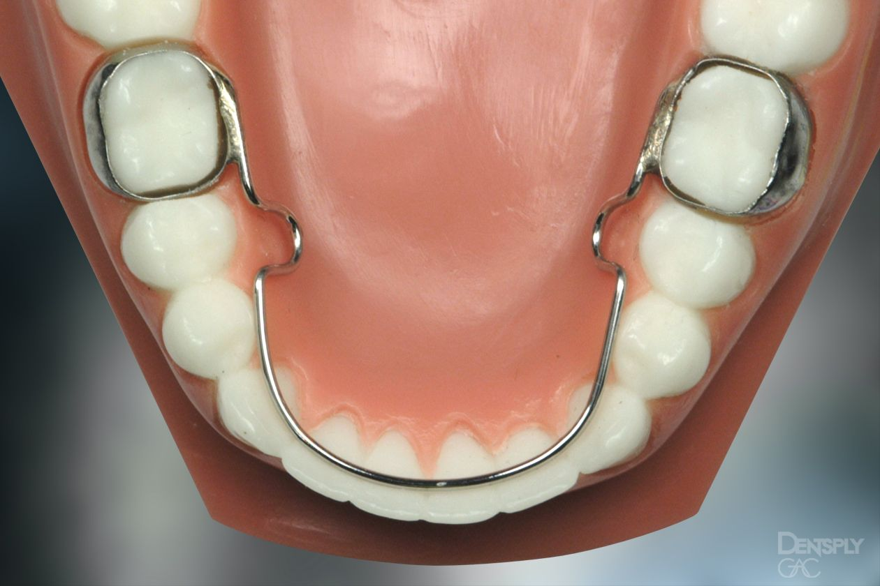 Shows a lingual arch on a model of teeth.