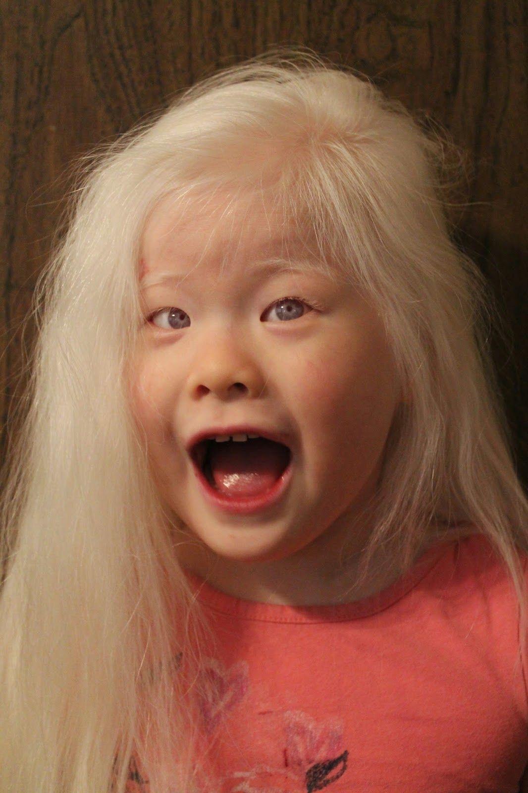 пискульку азиаты альбиносы фото выключать воду приходится