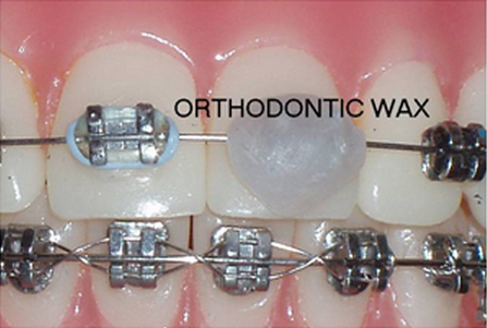What Is Orthodontic Wax Orthodontics Wax Orthodontist