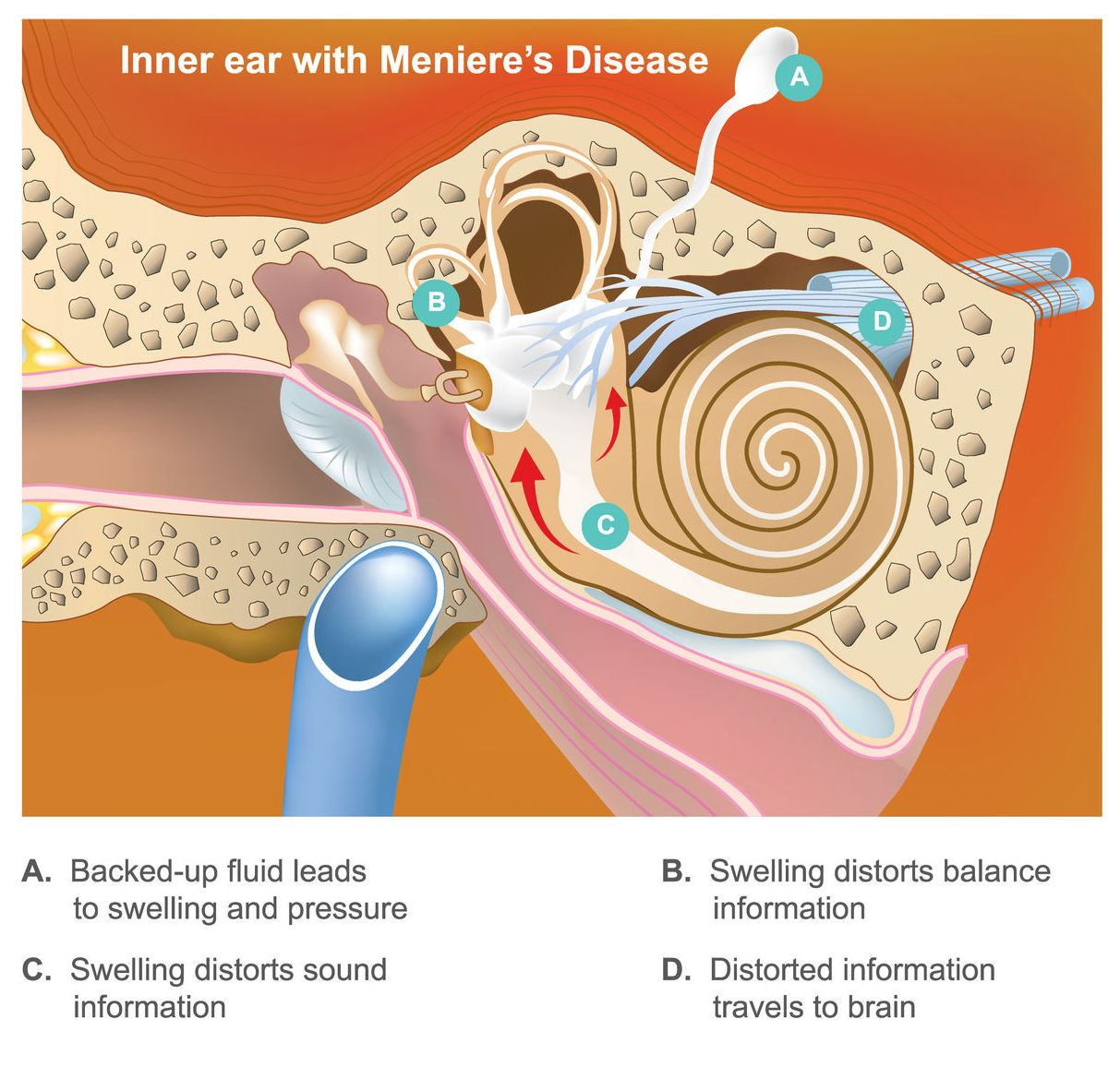 Difference between menieres disease and vertigo in 2020