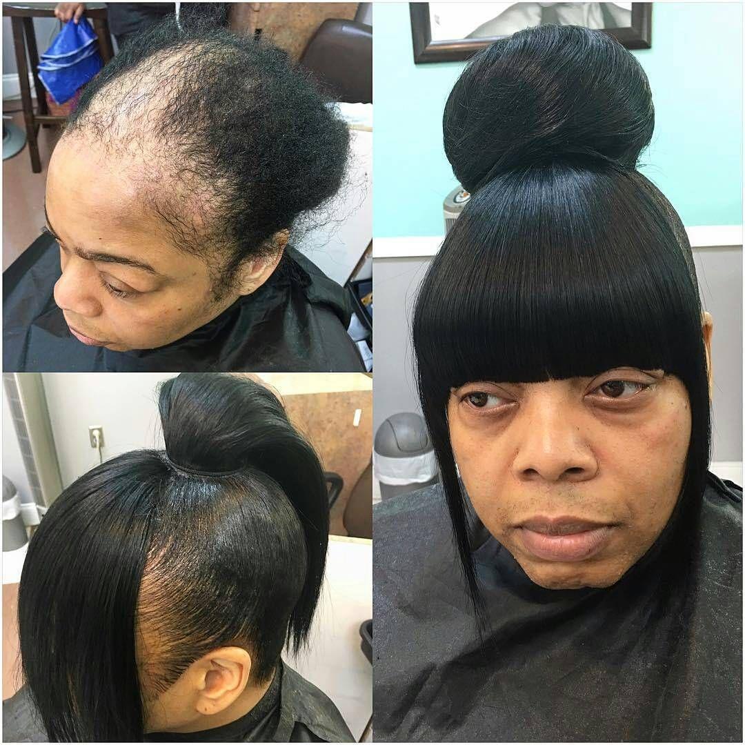 Tag Hairbydonetta Fakeittilumakeit Alopeciaslay Naturalhair Transformation Quickweave Updo Bun Bangs Kilt Alopecia Hairstyles Epic Hair Hair Plugs