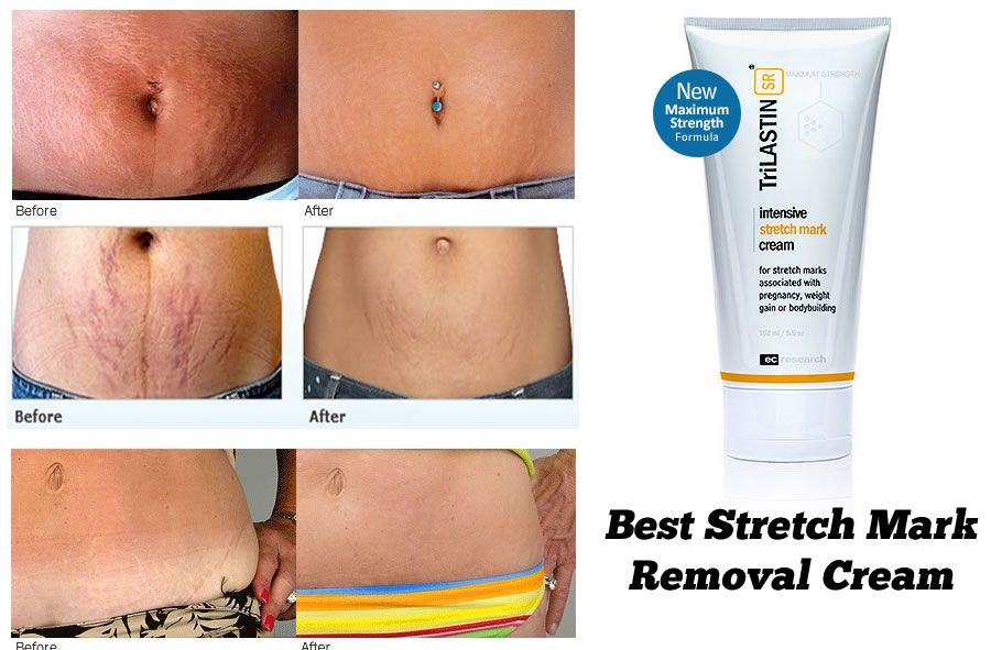 Best Stretch Mark Removal Cream You Will See Visible Results In