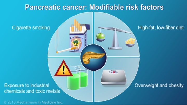 Modifiable risk factors include cigarette smoking