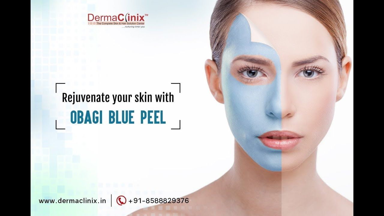 Obagi blue peel is a relatively simple and quick procedure