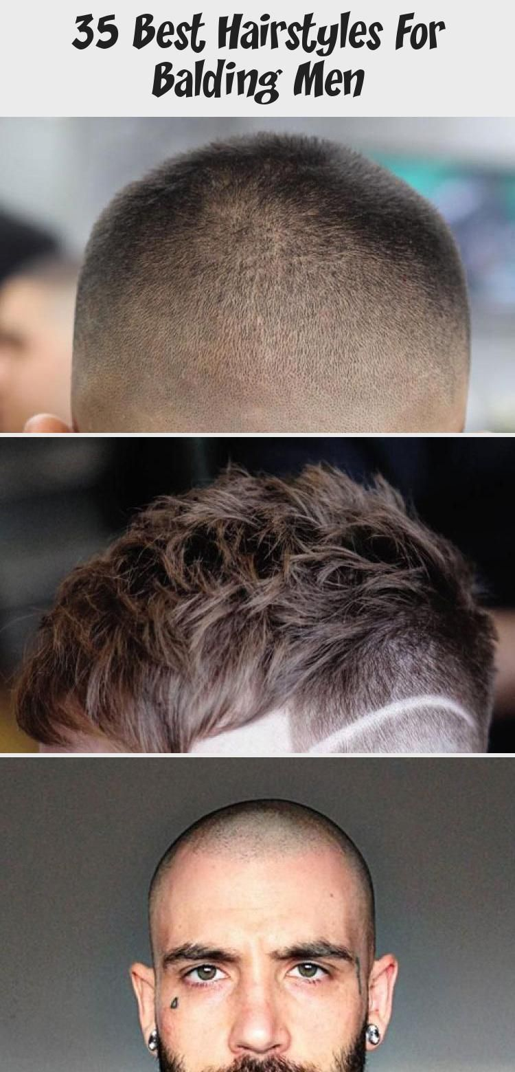 13+ Braids for men with receding hairline ideas