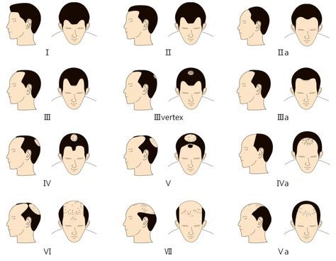 Stages Symptoms And Treatment Of Male Pattern Baldness Cure Best Male Pattern Baldness Causes