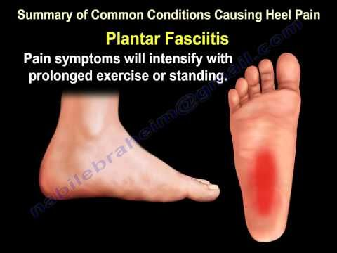 698be6d722 Heel Pain & The Baxter's Nerve - Everything You Need To Know - Dr. Nabil  Ebraheim - YouTube