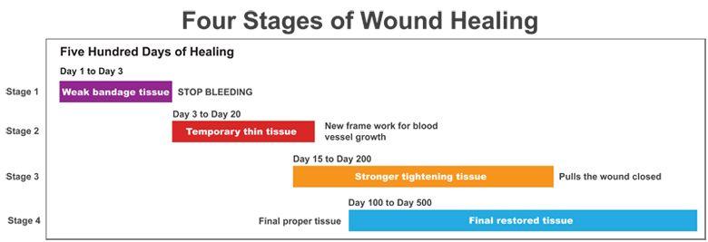 Wound Healing Wound Healing Body Healing Healing