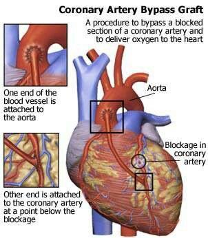 bypass operation hjärta