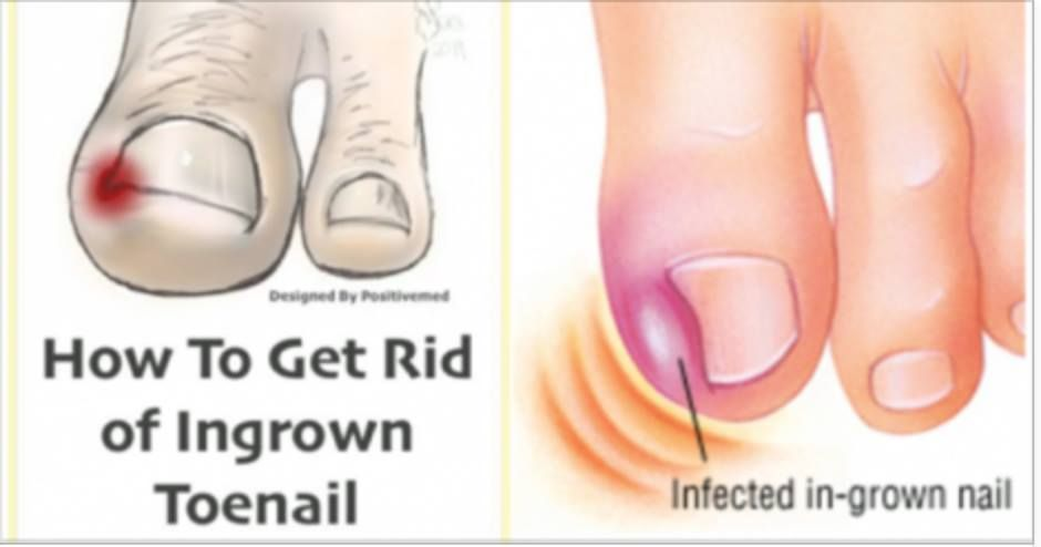 Natural Home Remedy for Ingrown Toenails | HEALTH TIPS | Ingrown toe ...