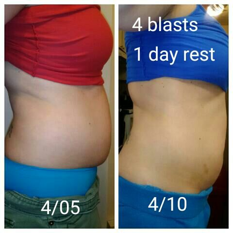 Transformation weight loss orlando fl