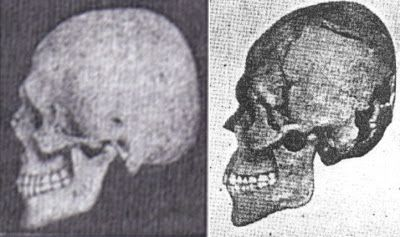 The Skulls Of The Dinaric Are Described As Being Tall Short Heads A