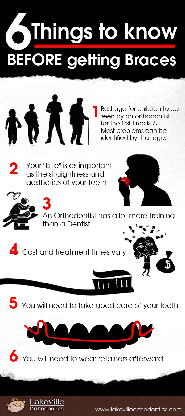 6 things before braces - infographics  #lakeville #orthodontics #orthodontictreatment