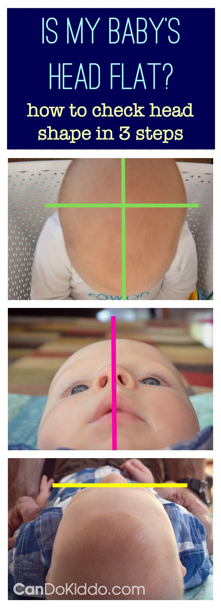 Positional Plagiocephaly Is My Baby S Head Flat Infant