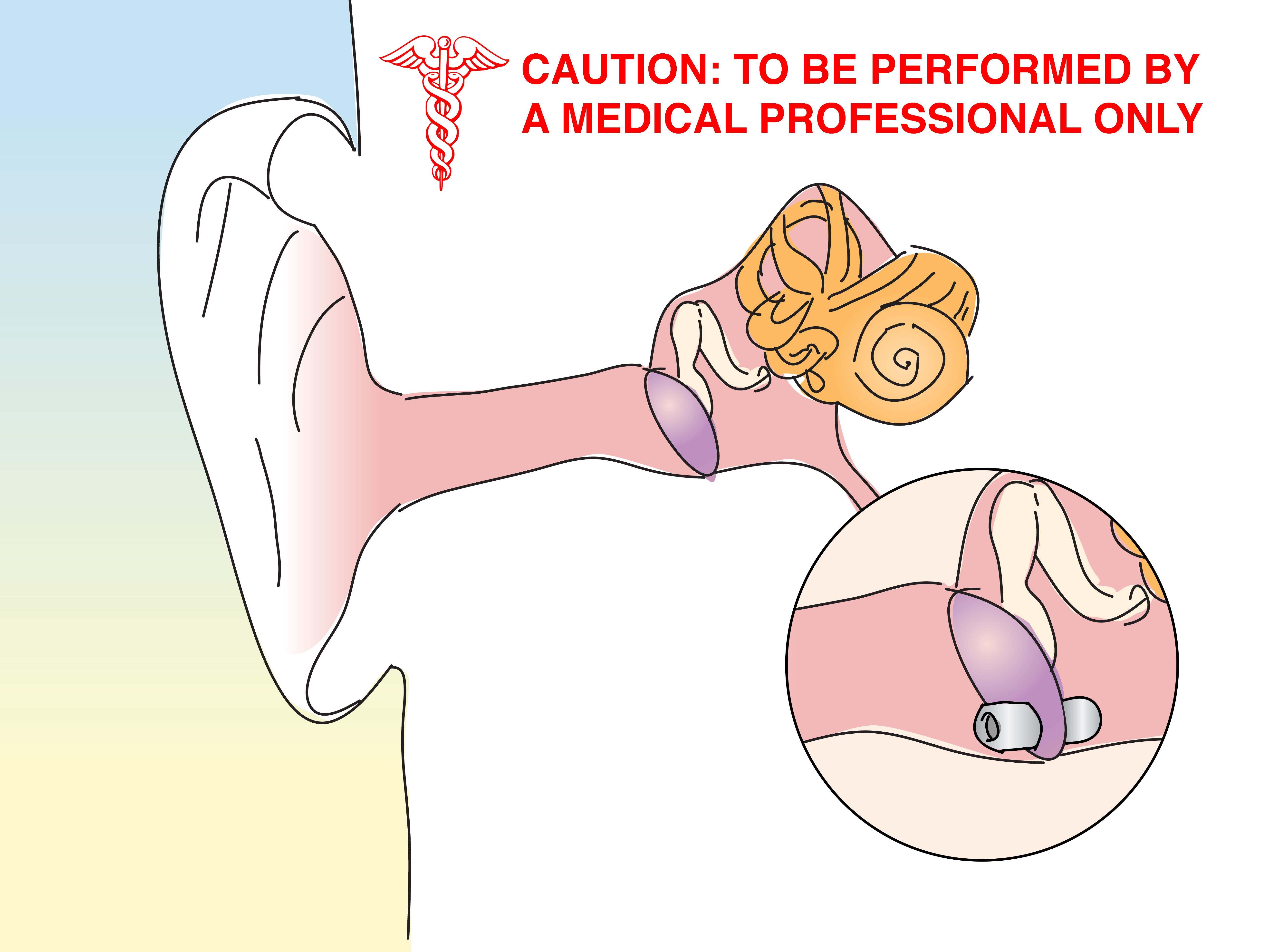 How to Unclog the Inner Ear or Eustachian Tube images