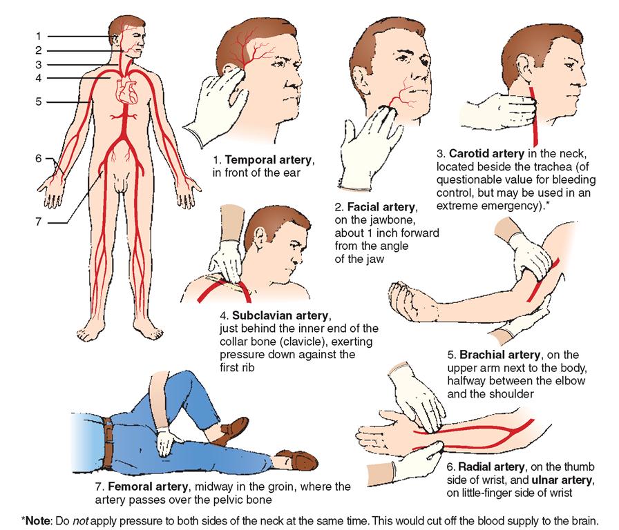 Stop Bleeding by Pinching These Universal Pressure Points
