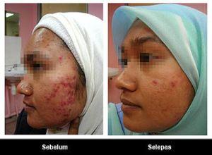 The Body Shop Cara Mengurangi Bopeng Jerawat