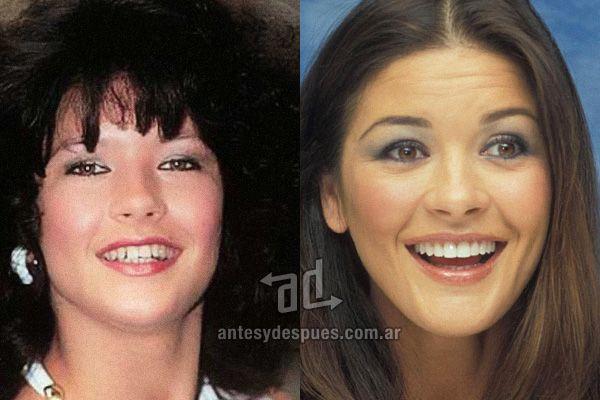 The new smile of Catherine Zeta Jones, afterdental surgery