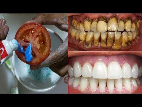 Magic Teeth Whitening-Methode, Bleichen der Zähne innerhalb von 2 Minuten zu Hause – Pearl …   – diş sağlığı