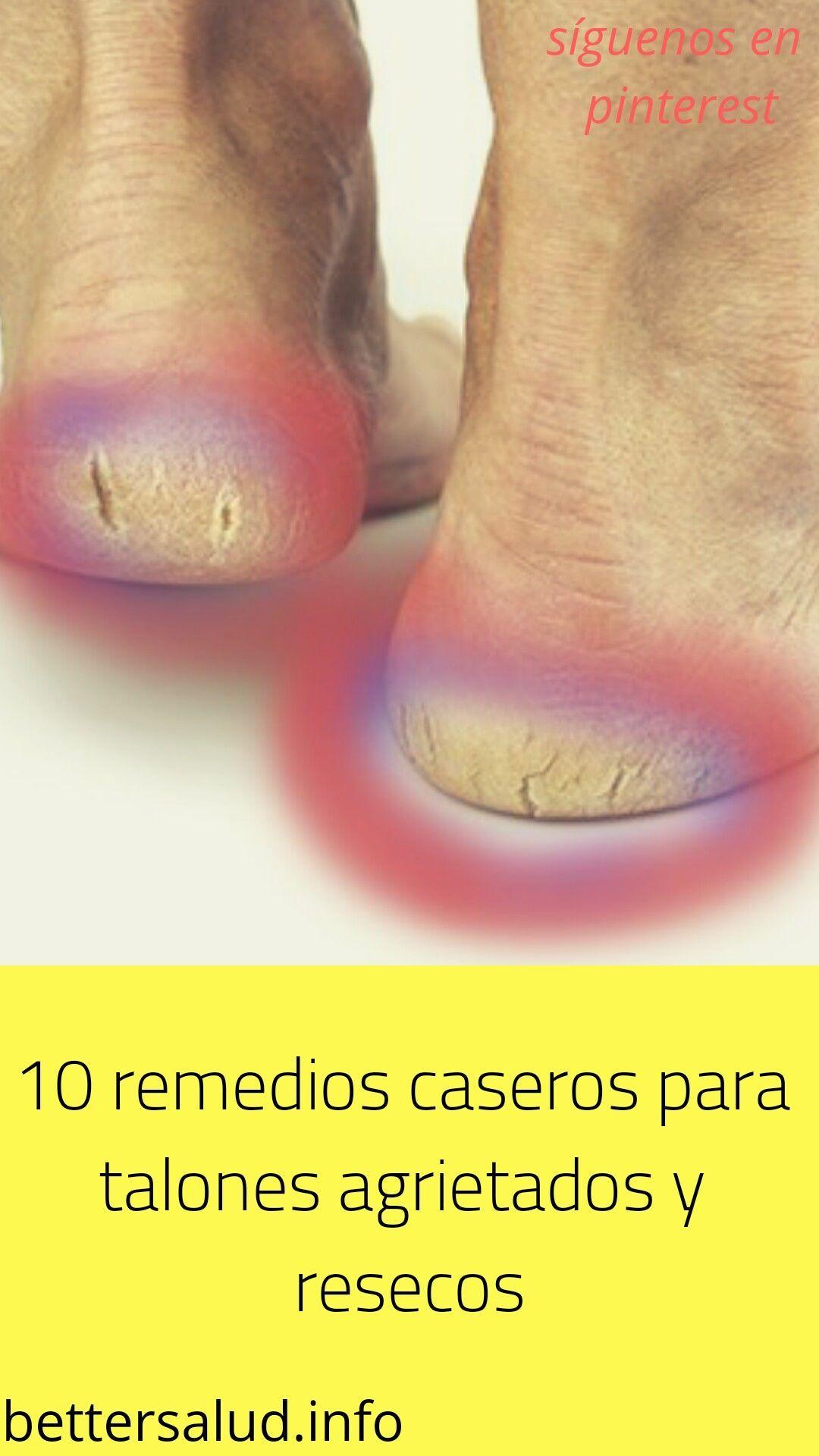 Quemar pies los para crema