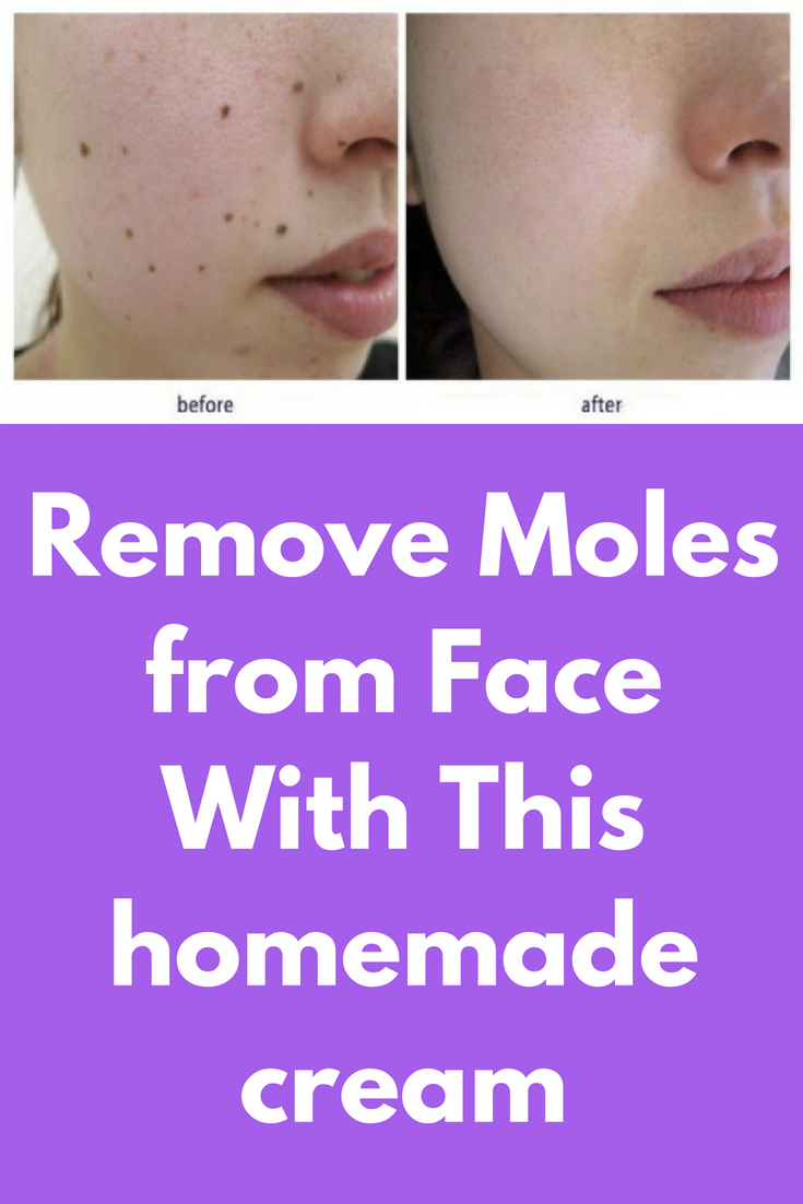 Remove Moles from Face With This homemade cream Ingredients: Baking soda  Castor Oil Directions to follow: There is … | Moles on face, Dry skin on  face, Mole removal