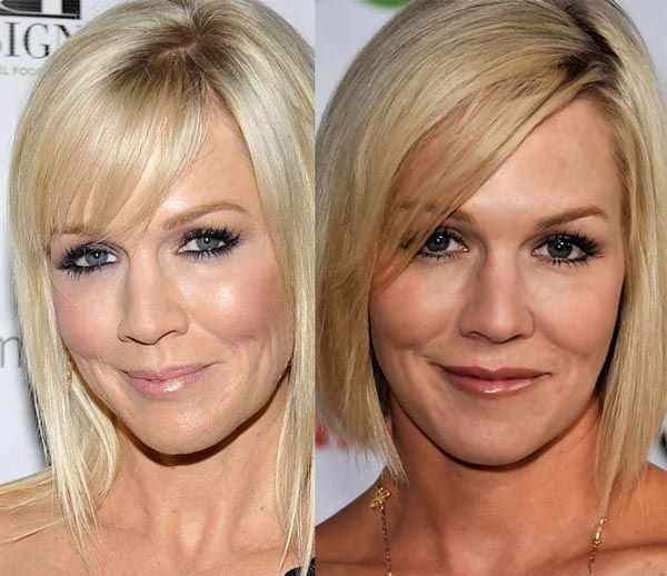 Jennie Garth Cosmetic Surgery Before After Cosmetic