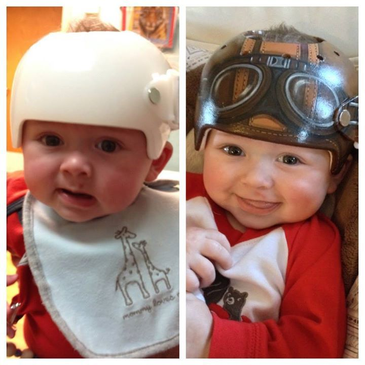 Cranial Helmet For Infant With Plagiocephaly By L Hetherington - Baby helmet decalspersonalized cranial band fairy decals just tinkering