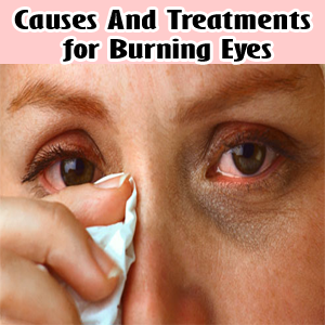 Causes And Treatments Of Burning Eyes Health Villas Eczema