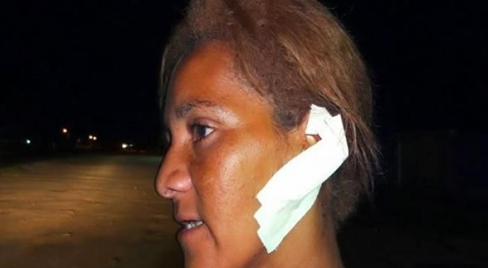 Observador Independente: ITABELA: Marido morde orelha da companheira, arran...