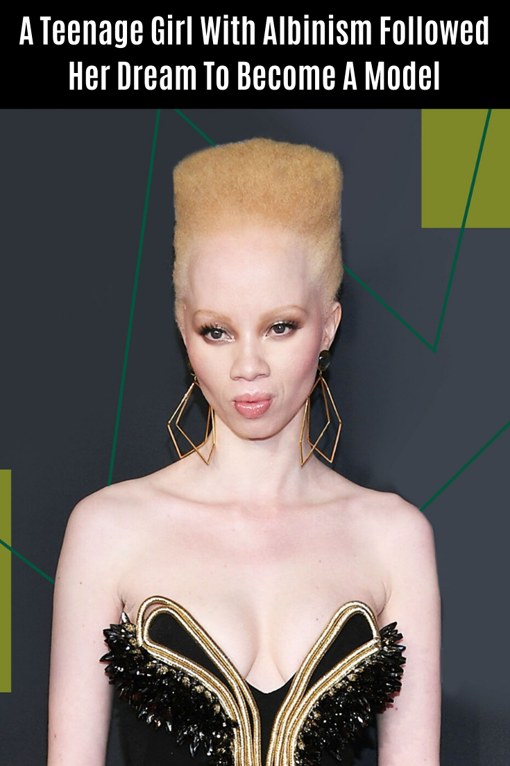A Teenage Girl With Albinism Followed Her Dream To Become A Model A With Her To A