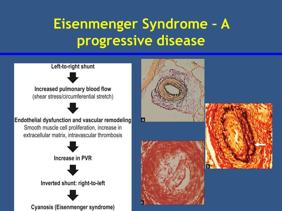 25+ best ideas about Eisenmenger's syndrome on Pinterest ...