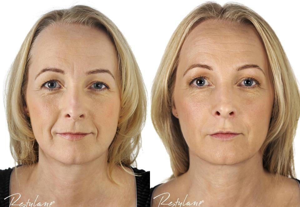rejuvenation delaware county facial