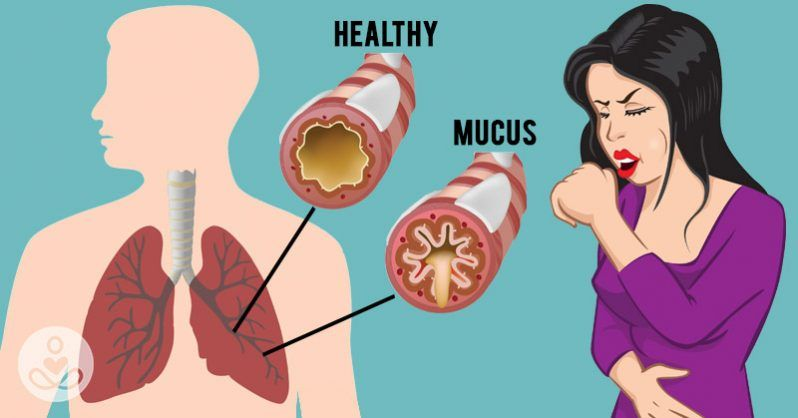 How to get rid of mucus and phlegm in your chest and throat as fast as possible | Chest congestion. Getting rid of mucus. Chest congestion remedies
