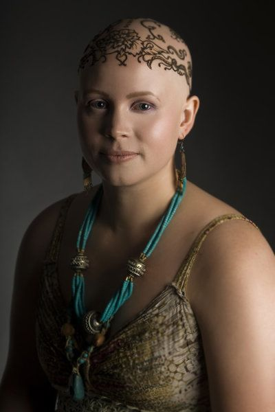 Alopecia Patients Overcome Their Hair Loss With Beautiful Henna Crowns