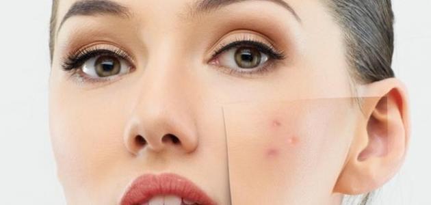 طريقة علاج حبوب الوجه خلال فترة الحمل Pimples How To Remove Pimples Pigmentation Treatment