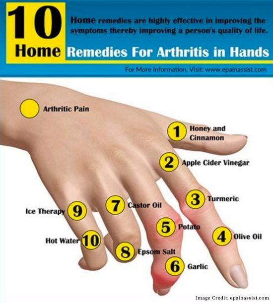 Arthritis In Hands – Why You Should Be Concerned
