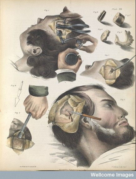 Plate Xxiv Trepanning Or Trephining Of The Cranium Medical Drawings Medical History Medical
