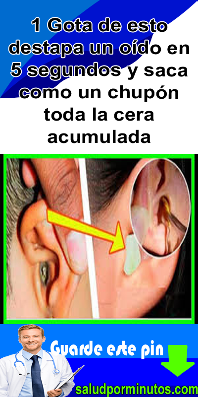 7 Ideas De Remover La Cera De Los Oidos Cera De Los Oidos Oido Remedios Para La Salud