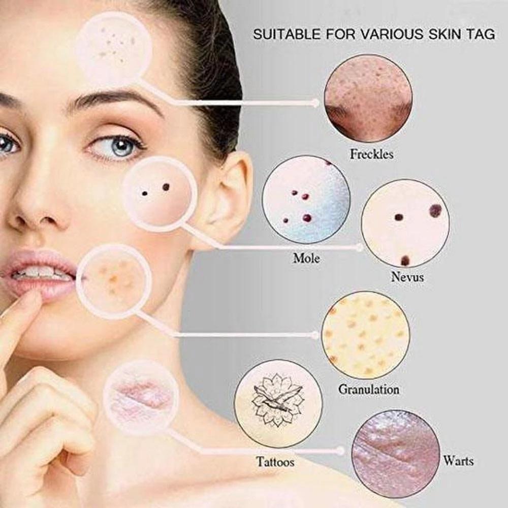 Blue Light Skin Spots Removal Pen Chicvoss Skin Spot Remover Light Skin Spots Blue Light Therapy
