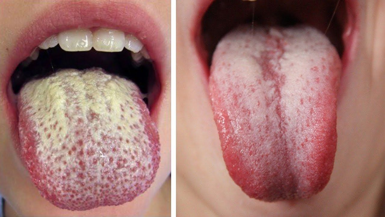 0154dce5d3235ca677413ac6224071ea - How To Get Rid Of A White Tongue Naturally