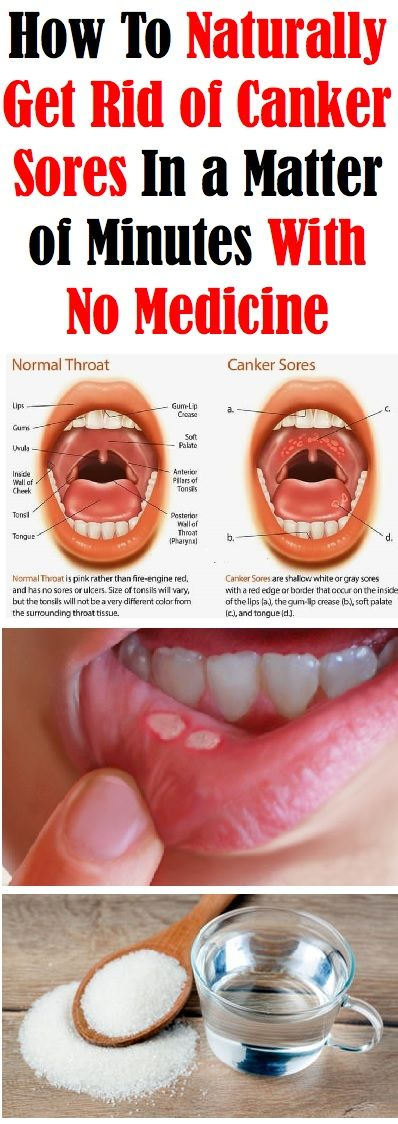 How do you cure a canker sore in your mouth