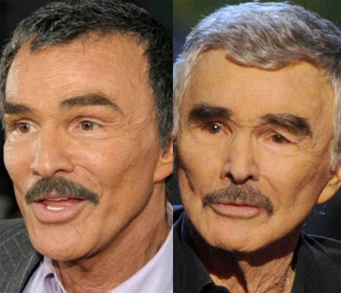 Did Burt Reynolds Had Plastic Surgery Celebrity Plastic