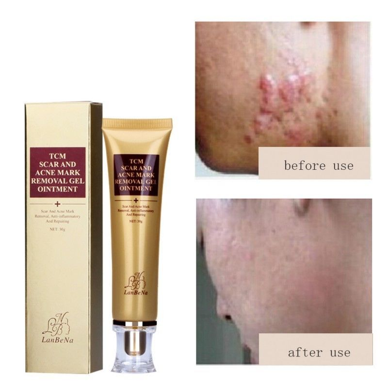 Details About 30g Scar Acnes Stretch Gel Cream Marks Keloid Skin