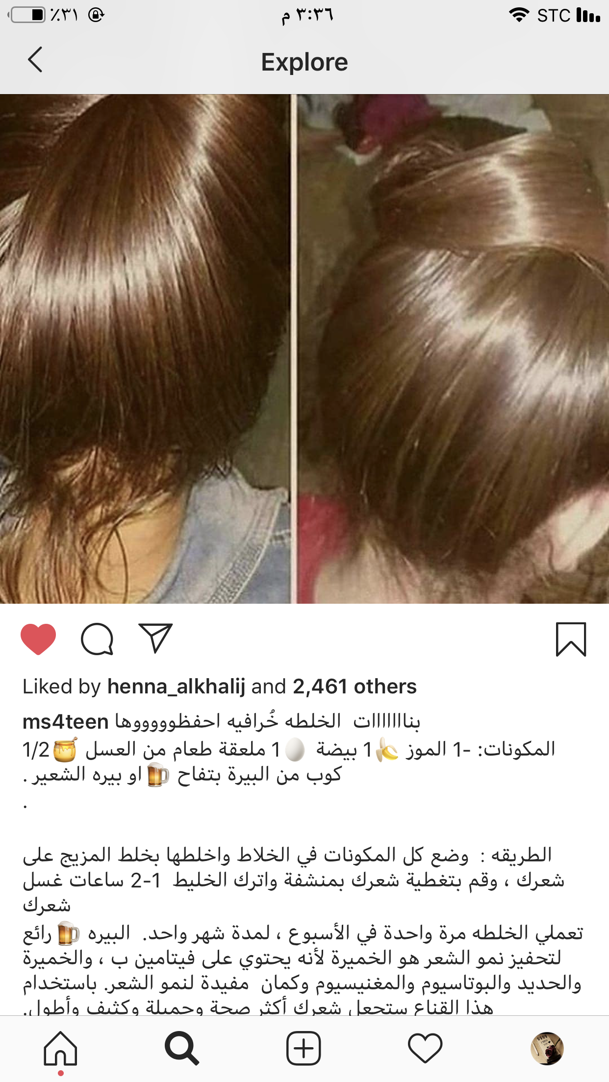 Pin By Hayat Belhabib On خلطات شعر Hair Care Oils Diy Hair Treatment Beauty Recipes Hair