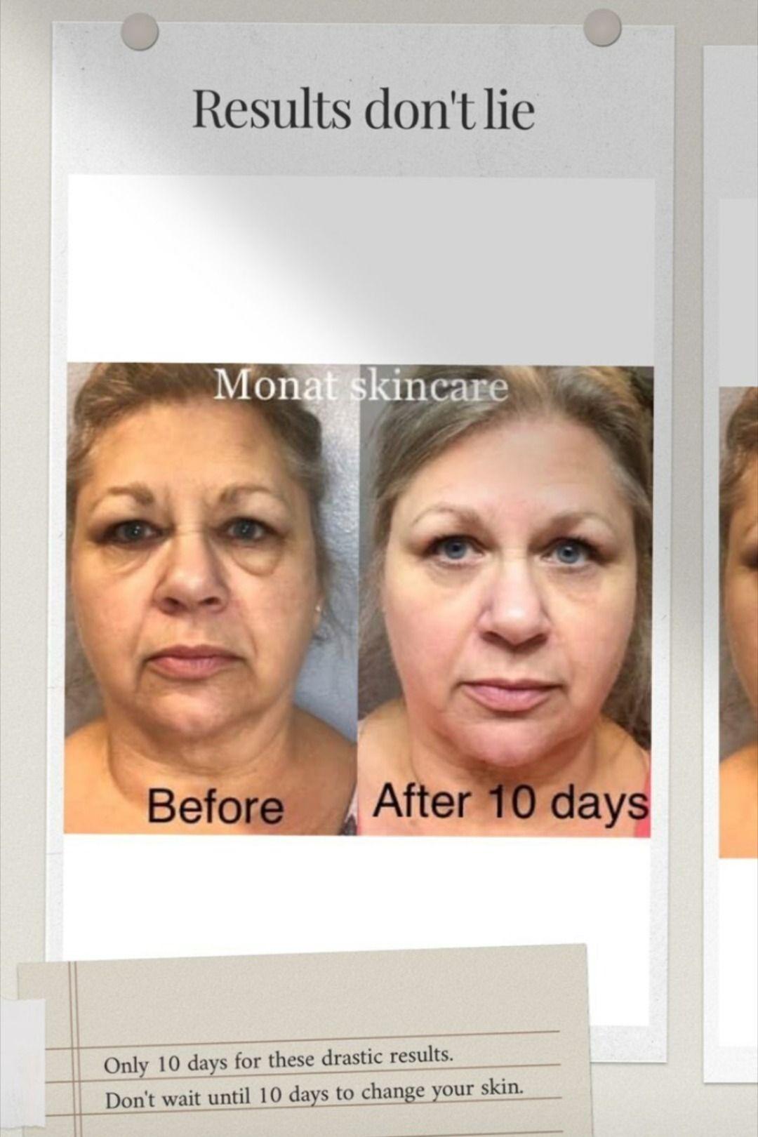 Monat Skincare Results Monat Skin Care Tighter Skin