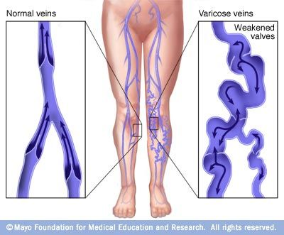 Varicose veins may be caused by weakened valves (incompetent valves) within the veins that allow blood to pool in your veins instead of traveling to your heart.