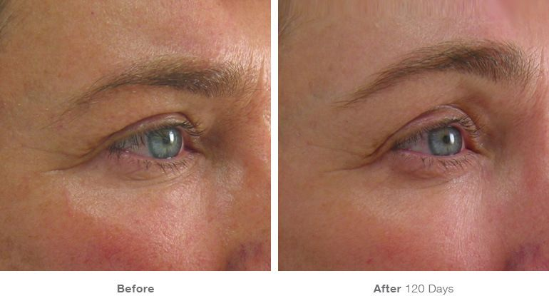 Brow Lift & Tighten Before & After Results | Mini face ...